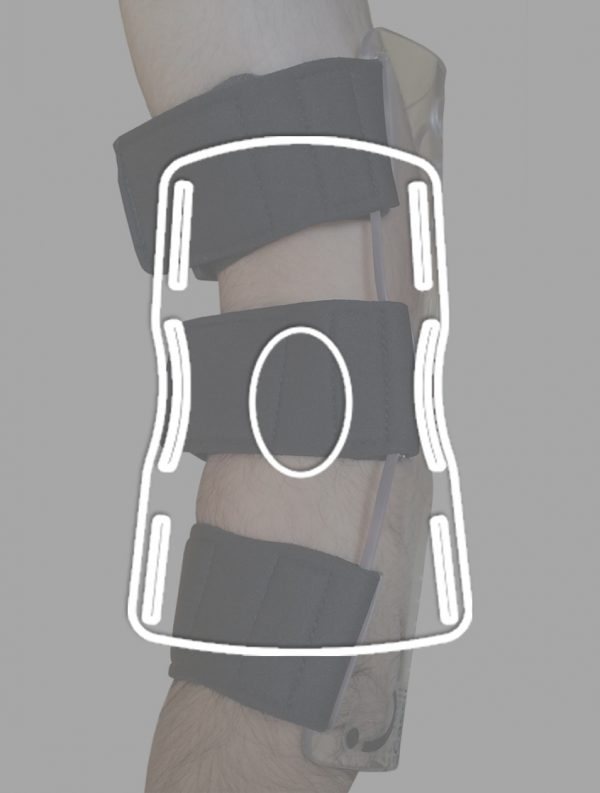 1-elbow-immobilizer-cassithover