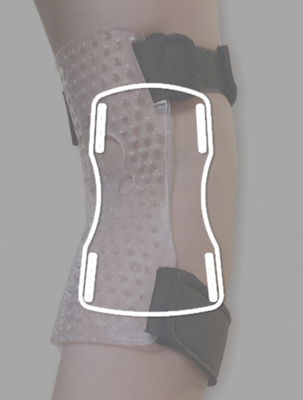 1-internal-elbow-splint-cassithover